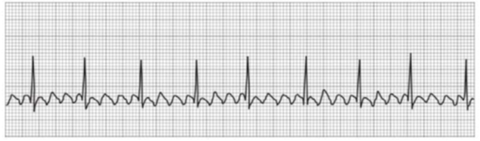 Chapter 14, Problem 4RQ, 4.   QRS duration: _____________ QT duration: ________________ Ventricular rate and rhythm: