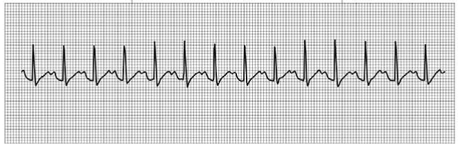 Chapter 14, Problem 7RQ,  QRS duration: ____________ QT duration: ____________ Ventricular rate and rhythm: